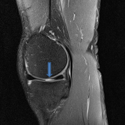 2015-01-MRI-left-knee-from-left-with-arrow